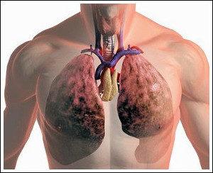 изображение пораженных легких