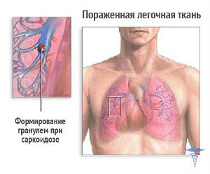 формирование гранулем при саркоидозе