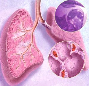 изображение легких при болезни