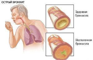 сравнение здоровой и воспаленной бронхиолы