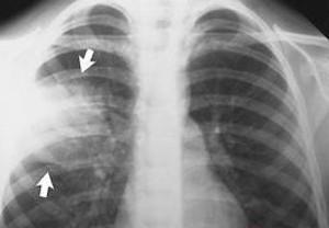 воспаление легких на рентгене