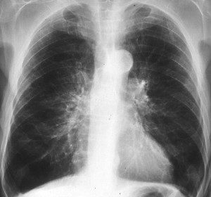 рентген легких при бронхите