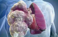 3D изображение лёгкого больного ХОБЛ