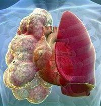 3D изображение лёгкого с буллемами