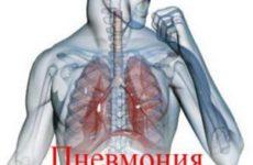 3D изображение больного с пнемонией