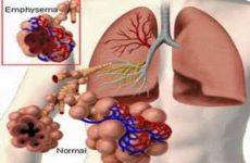 схема поражения лёгкого энфиземой