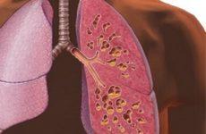 лёгкое больного пораженного муковисцидозом