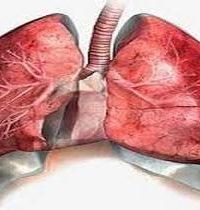 лёгкое с разросшейся соединительной тканью