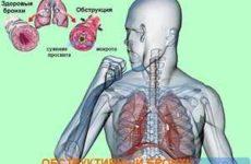 3D изображение обструкции лёгкого