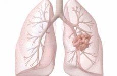 вид опухоли лёгкого