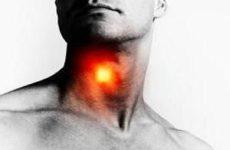 3Д изображения воспаления в горле