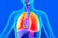 3д изображение больного лёгкого
