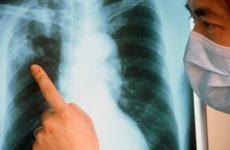 обнаружение туберкулёза на рентгеновском снимке