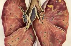 вид лёгкого с поражёнными участками