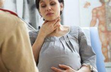 больное горло у беременной