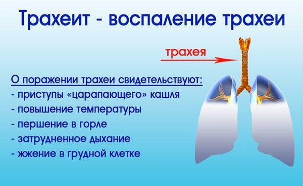 Лечение острого трахеита у взрослых штука