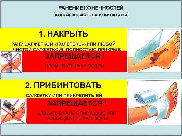 как наложить повязку на рану