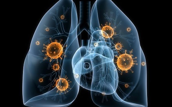 легкие с туберкулезом