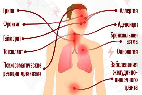 болезни при кашле