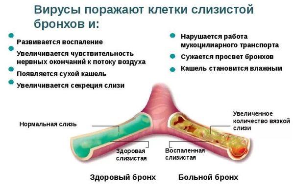 патогенез кашля