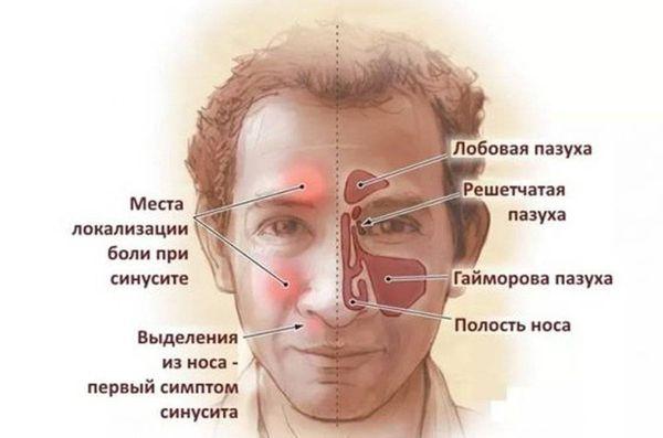 синусит симптомы