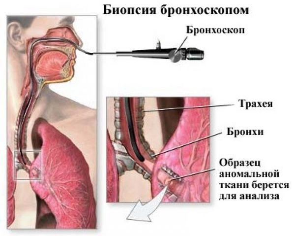 биопсия бронхоскопом