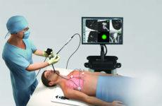 бронхоскопия