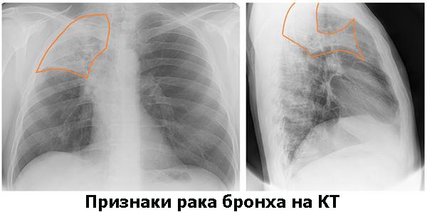 признаки рака бронха на КТ