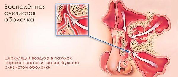 катаральная форма гайморита
