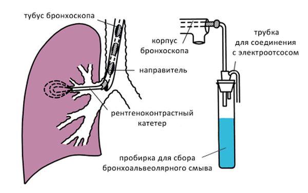 бронхоальвеолярный лаваж