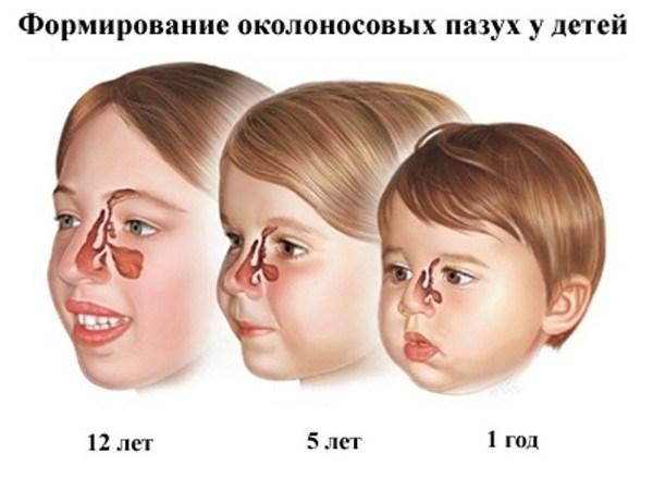 формирование пазух у детей