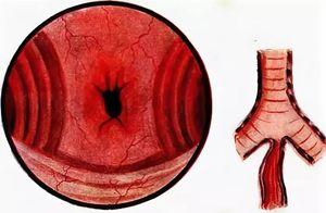 трахеопищеводный свищ