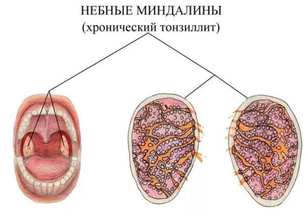 миндалины при тонзиллите