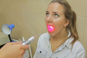 лазерная терапия миндалин