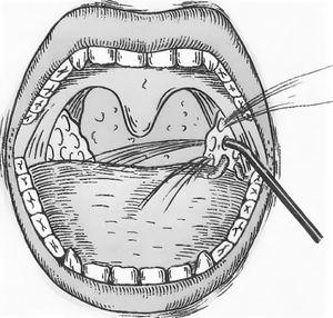 промывание миндалин