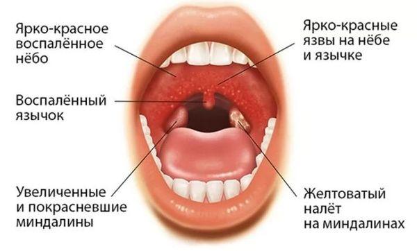 герпетическая ангина симптомы