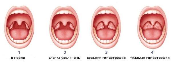 миндалины норма и патология