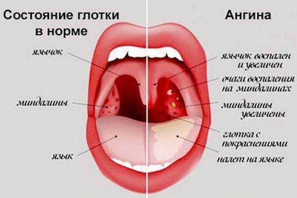 горло при ангине