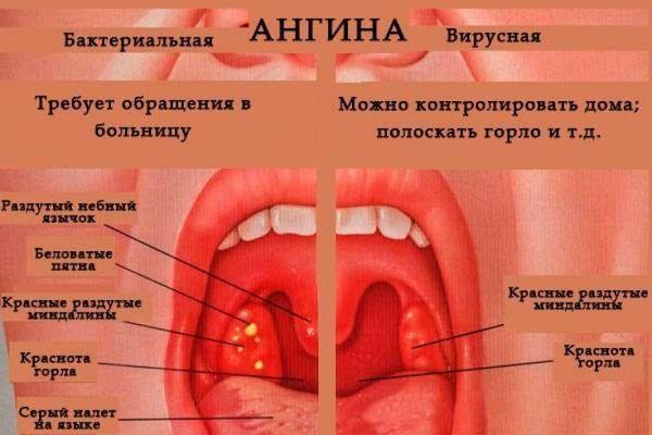 вирусная и бактериальная ангина