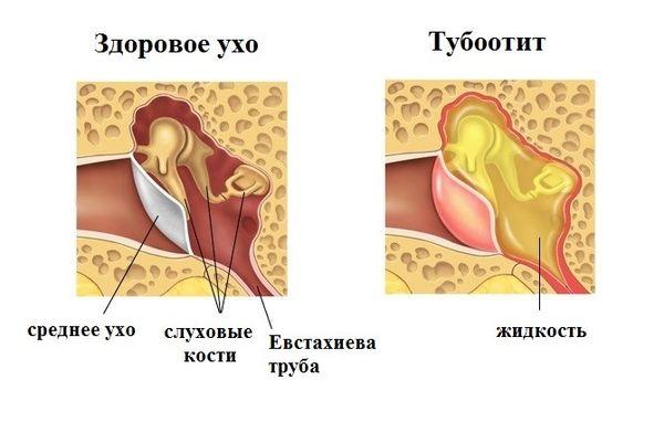 тубоотит