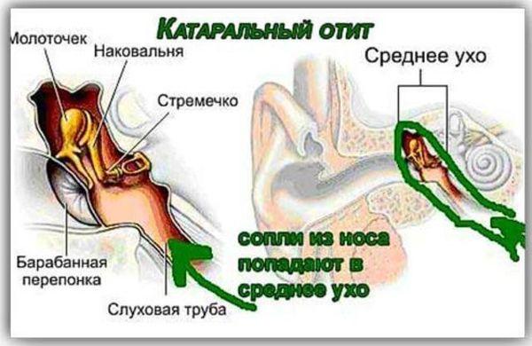 катаральный отит