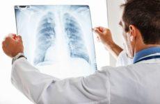 врач смотрит снимок легких
