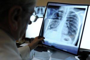 врач смотрит ретгеновский снимок