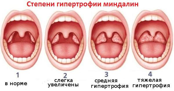 степени увеличения миндалин