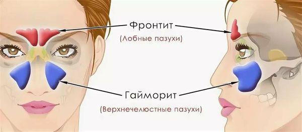 фронтит